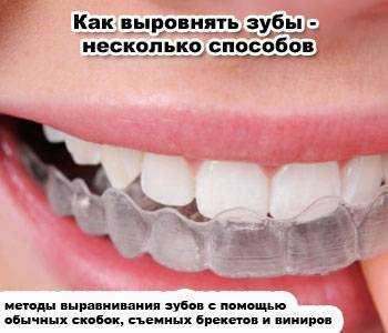 Зубы выровнялись сами по себе